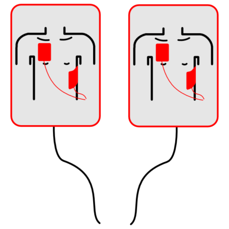 AED-UCC_PADS