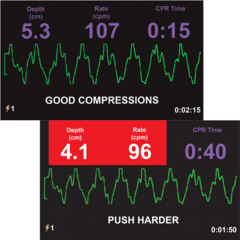 Defibrillator ZOLL AED 3 BLS_Monitor